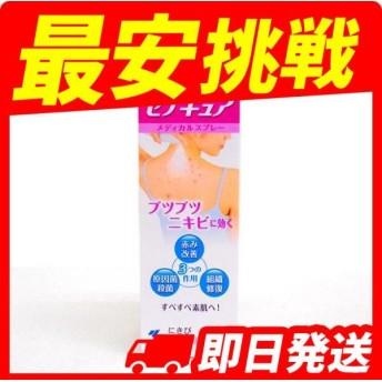 ニキビ 薬 市販薬 セナキュア 100mL 第2類医薬品