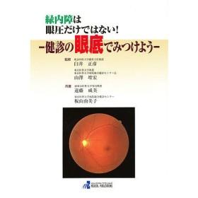 緑内障は眼圧だけではない! 健診の眼底で