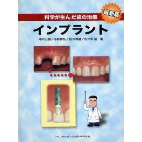 科学が生んだ歯の治療インプラント/中村公雄/小野善弘/松井徳雄