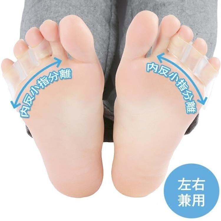 分趾器 日本 小腳趾器小拇指內翻分趾器分離器小拇指外翻器 尾牙年會禮物