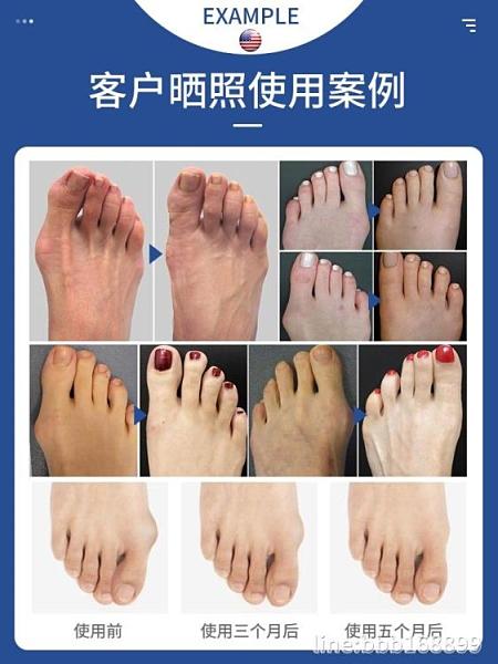 分趾器 美國品牌拇指腳指大腳骨腳趾分趾器男女士日夜用可穿鞋 星河光年