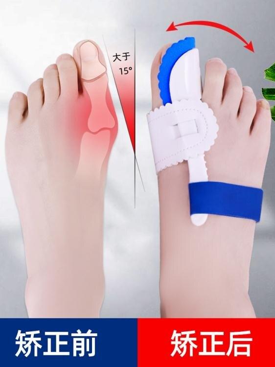 [快速出貨]分趾器 日本大母腳趾頭拇指外翻矯正器糾正大腳骨型分離矯形分趾器男女士 雙12購物節