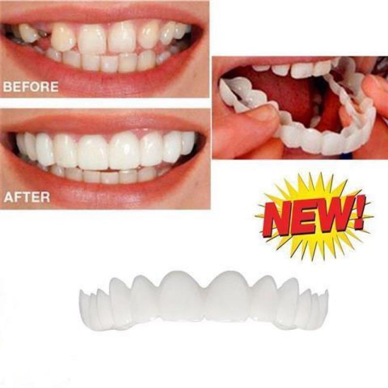 牙齒咬合矯正器臨時牙套吃飯神器防磨防刮嘴保持器矯正器遮蓋隱形