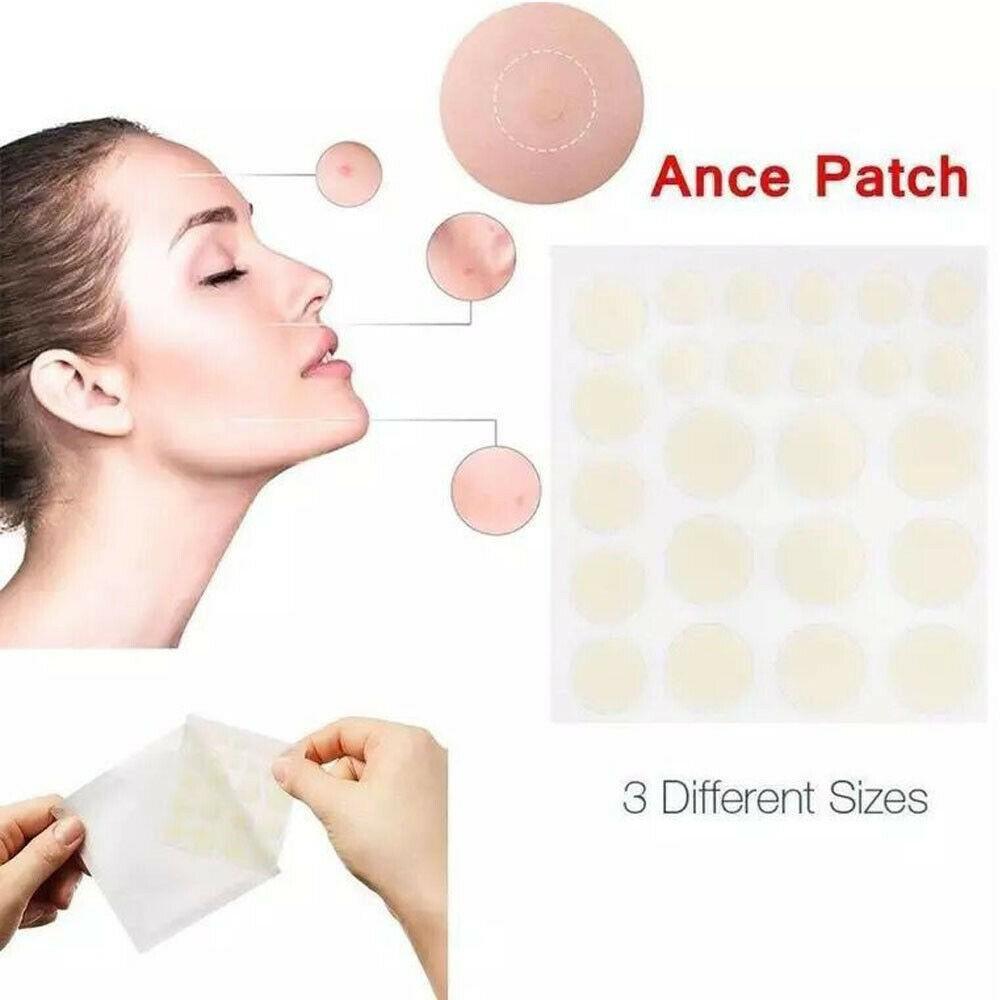 痤瘡貼 72 片防水透氣粉刺貼除黑頭粉刺治療遮瑕膏毛孔清潔