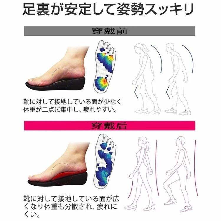日本扁平足矯鞋墊足弓墊o型腿足外翻矯器糾平底足矯形神器