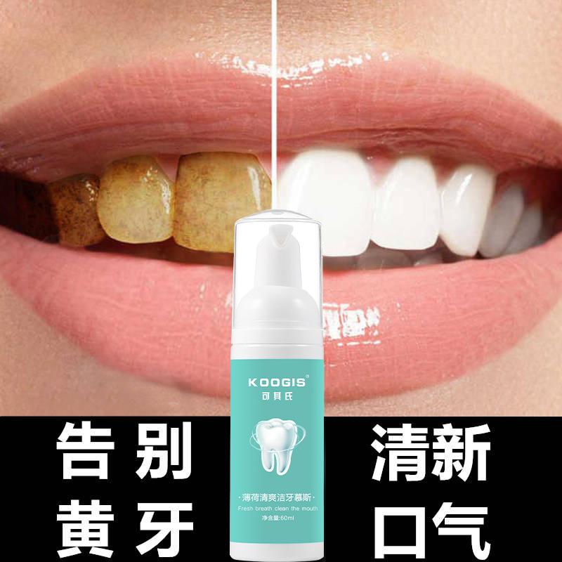 薄荷清爽潔牙慕斯 清爽牙齒口腔護理泡沫牙膏去污牙煙牙薄荷清香