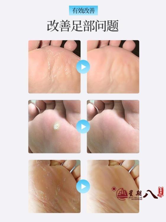 磨腳器 去老繭死皮修腳刀磨腳器搓腳扳去角質刨腳刀刮腳工具腳皮挫磨腳石 VK3897
