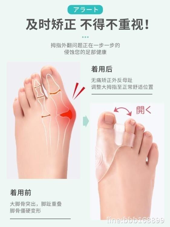 【618購物狂歡節】護指套 日本拇指器可以穿鞋趾器保護套分趾器男女特惠促銷