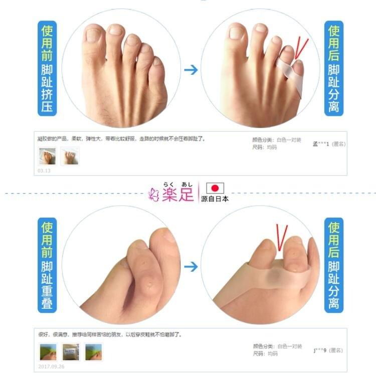 分趾器 日本小拇指矯正器保護套小腳趾矯正器可以穿鞋內翻外翻分趾器男女