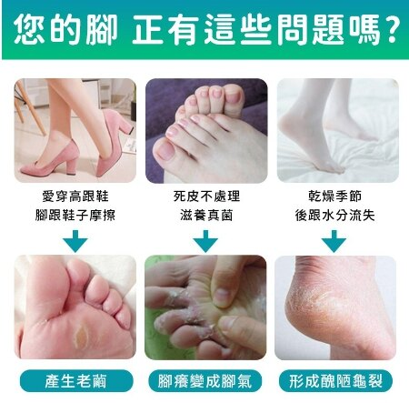 電動磨腳皮機 腳皮機 磨皮機 美足機 磨腳器 電動磨腳皮 去角質 去腳皮 電動磨腳 磨腳石 【A038】